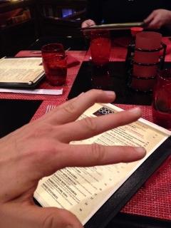 soft tissue mallot finger pic